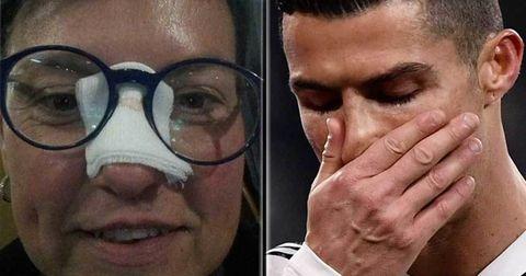 Роналдо нос